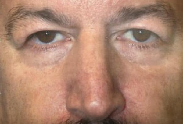Before Eyelid Rejuvenation