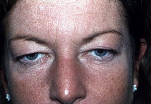 Before Eyelid Rejuvenation
