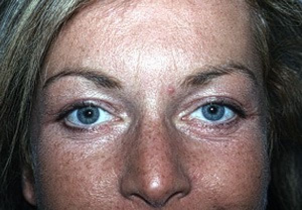 After Eyelid Rejuvenation