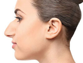 rhinoplasty featured